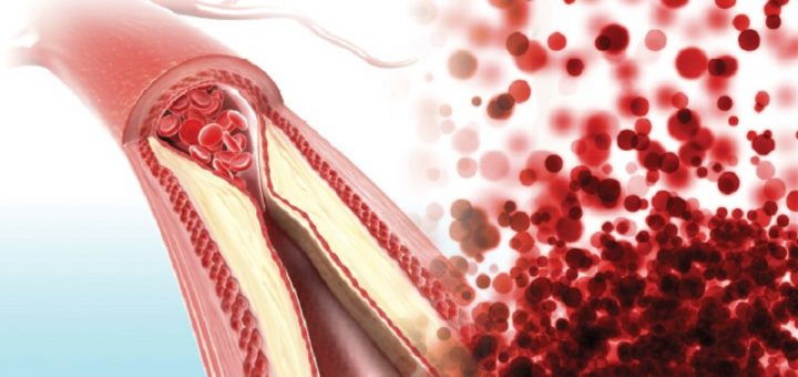arteriosclerosis and atherosclerosis