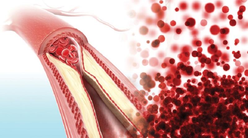 arteriosclerosis and atherosclerosis