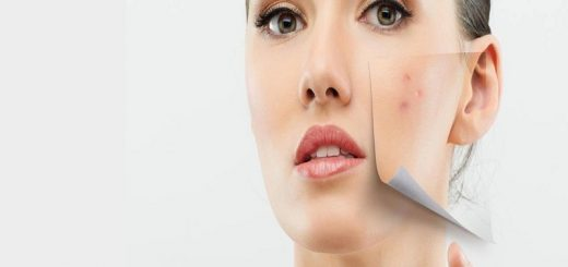 skin prone
