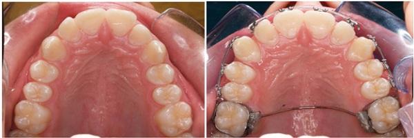 How do lingual braces work