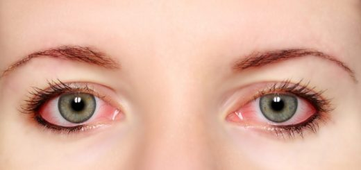 Causes red eyes